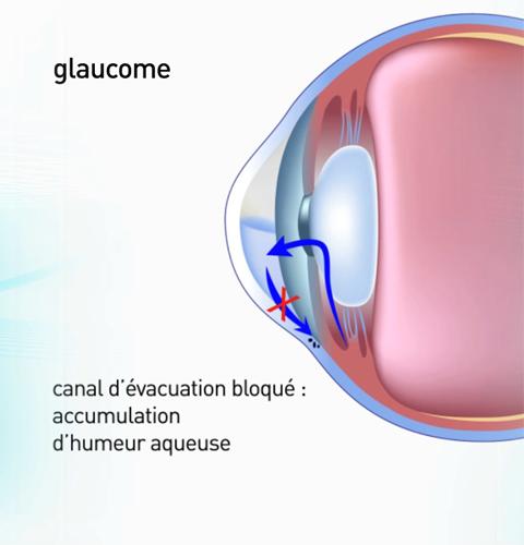 Ophtalmo Paris - Chirurgie du glaucome Paris - Ophtalmologue Paris